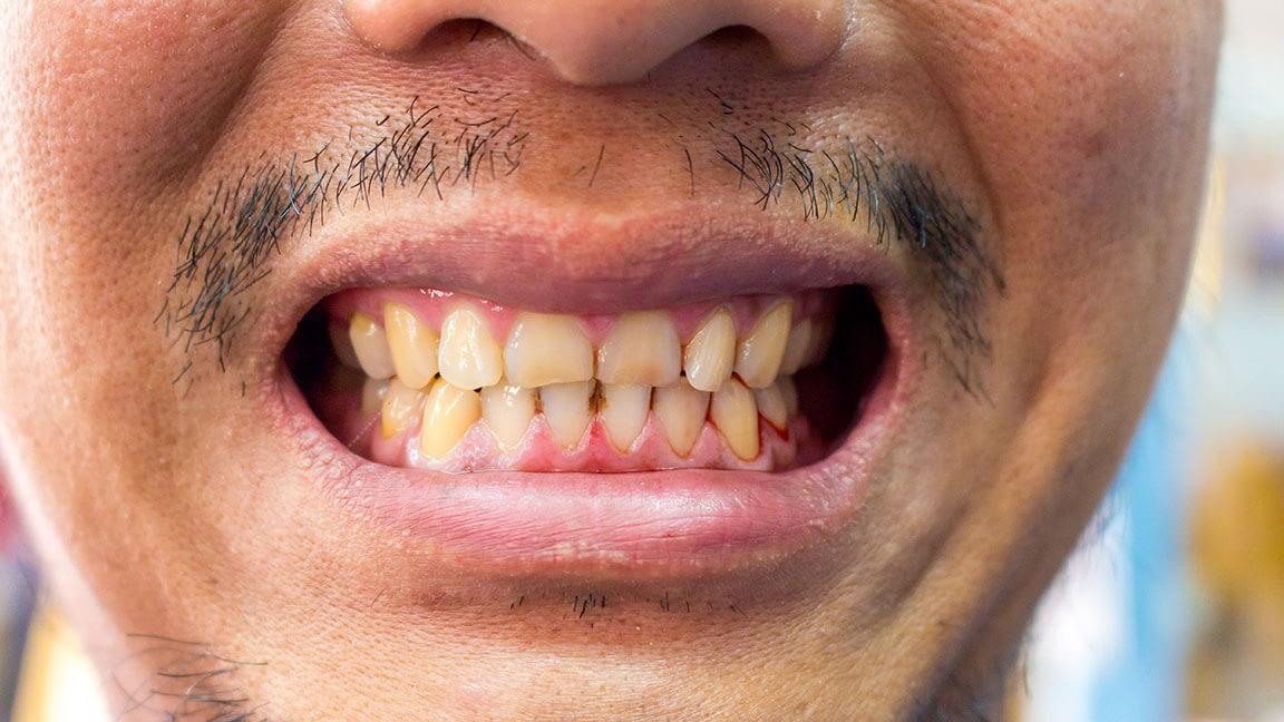 Oral Pathology